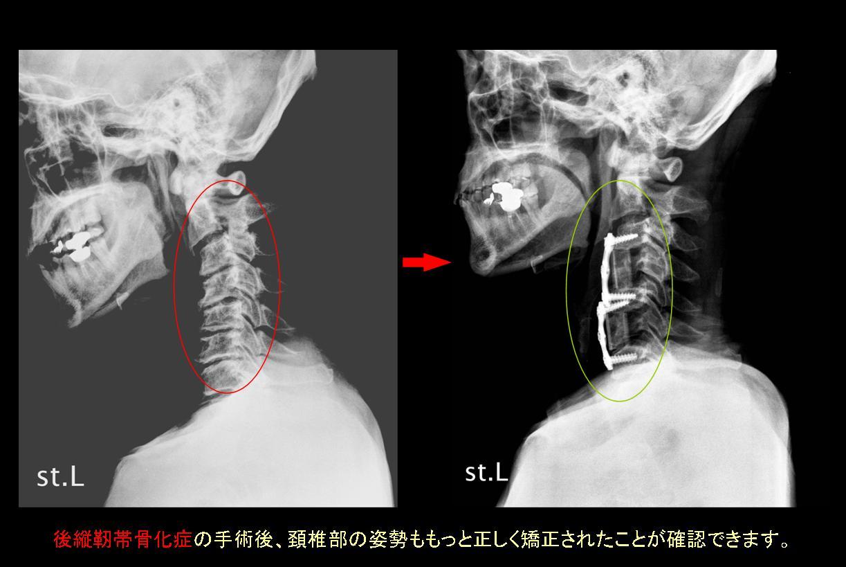 後縦靭帯骨化症のすべて(疾患、...